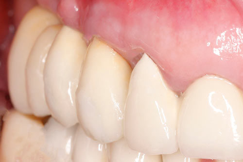 Пример имплантации зубов №12