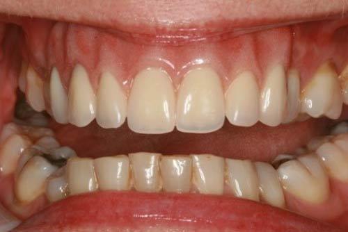Пример имплантации зубов №11