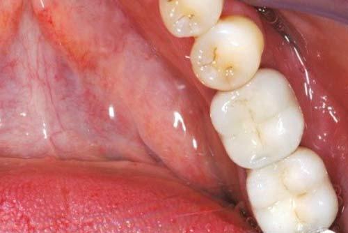 Пример имплантации зубов №10