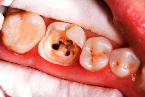 Установка зубной коронки №3