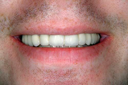 Установка зубного моста №1