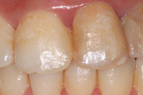 Установка зубных коронок №2