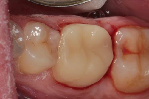 Установка зубной коронки №4