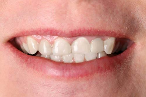 Установка зубной коронки №1