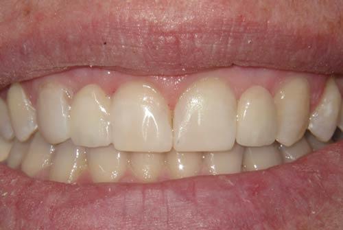 Установка зубного моста №2
