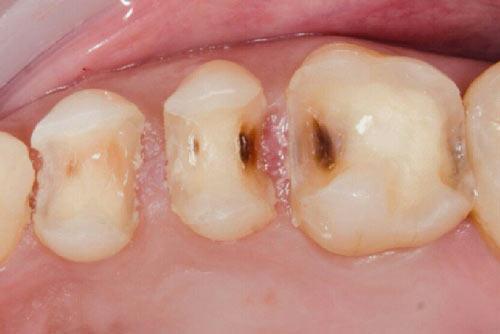 Пример лечения зубных каналов №5