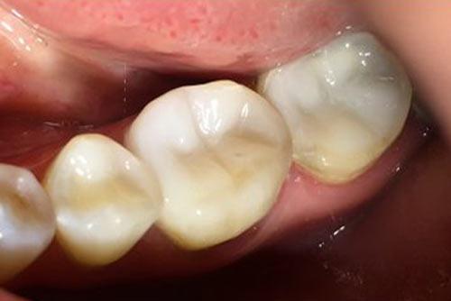 Пример лечения зубных каналов №1