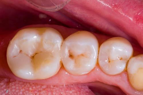 Пример лечения зубных каналов №6