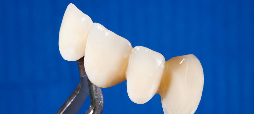 отпал зубной мост у пациента