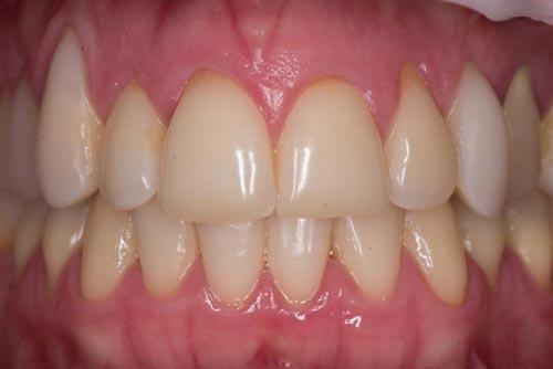 Пример лечения десен №3