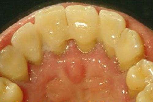 Пример лечения десен №14