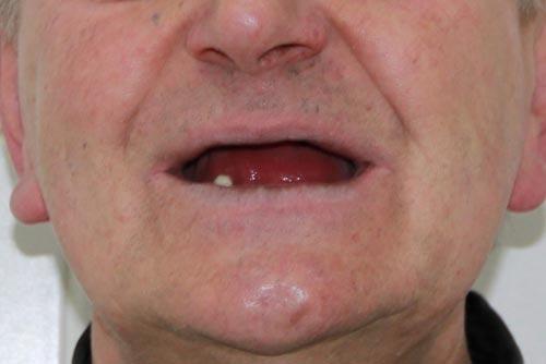 Пример протезирования зубов №9