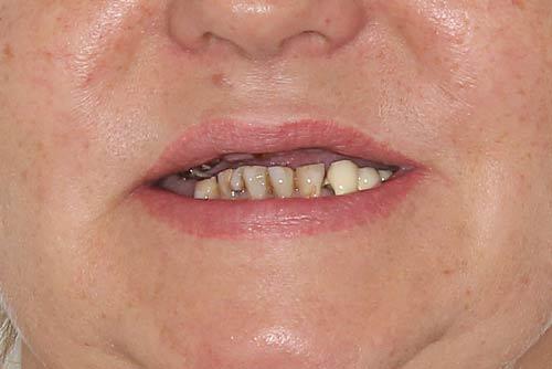 Пример протезирования зубов №8