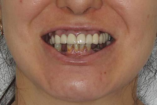 Пример протезирования зубов №6