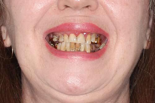 Пример протезирования зубов №5