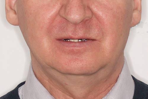 Пример протезирования зубов №1