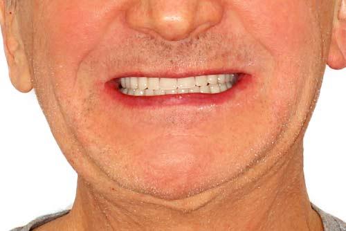 Пример протезирования зубов №7