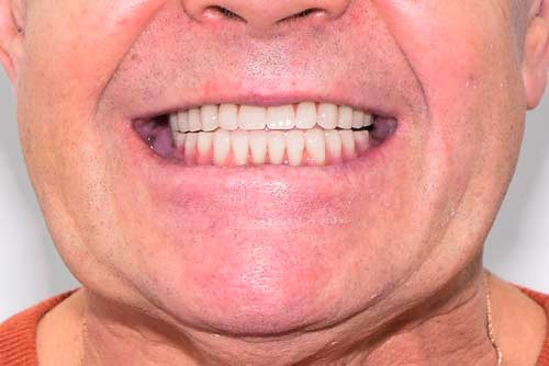 Пример протезирования зубов №4