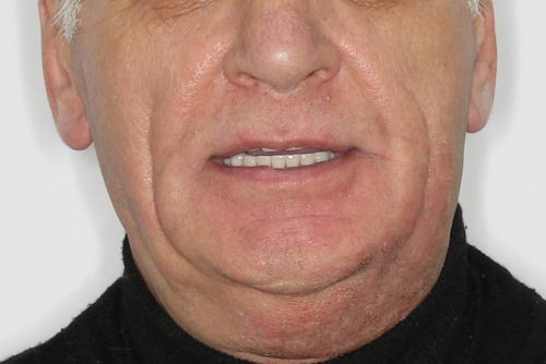 Пример протезирования зубов №3