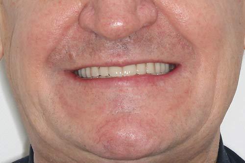 Пример протезирования зубов №2