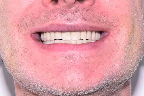 Пример протезирования зубов №10