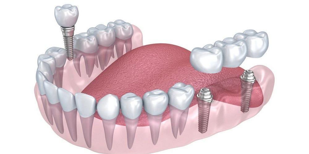 зубные коронки и мосты на имплантах