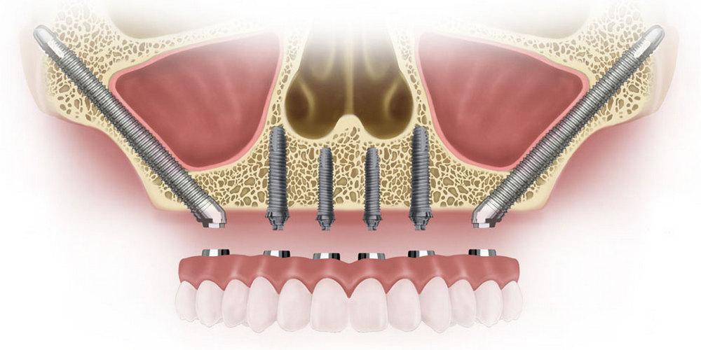 базальные скуловые импланты