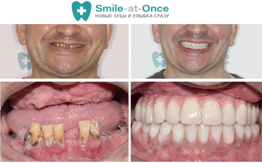 Пример восстановления зубов после пародонтоза