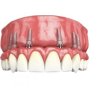Протезирование зубов All-on-6