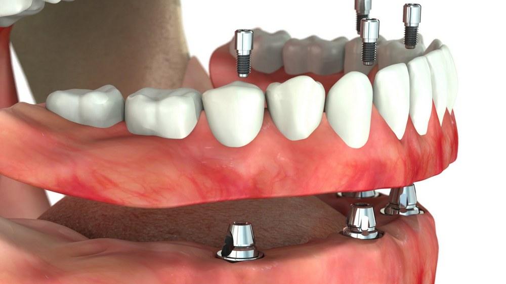 Винтовое крепление для зубных протезов на импланты