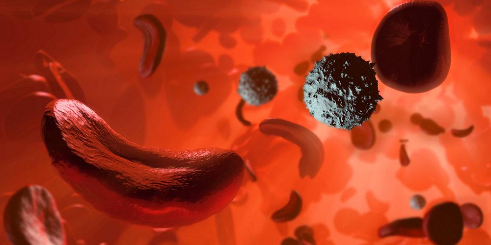 Болезни крови могут быть противопоказанием к имплантации