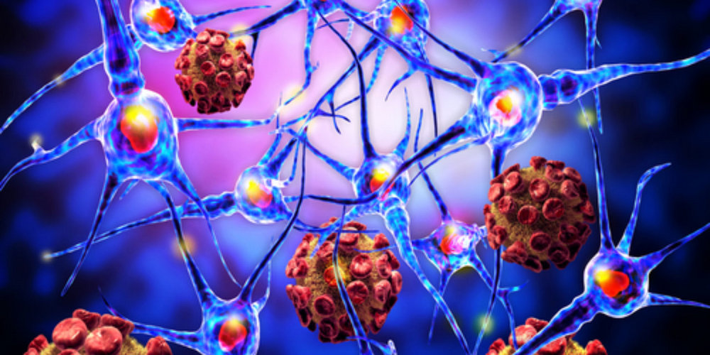 Злокачественная опухоль - это противопоказание для имплантации
