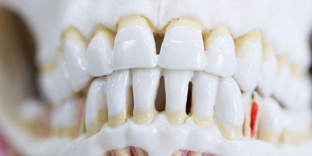 Пародонтит и пародонтоз при имплантации зубов